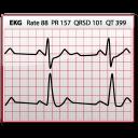 EKG-128